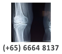 Singapore Sports & Orthopaedic Services Pte Ltd Photos